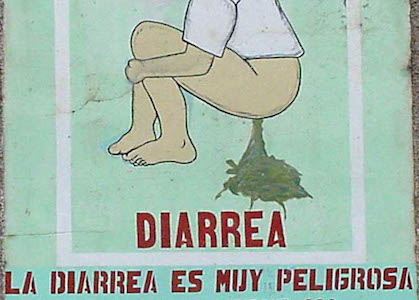 Traveler's Diarrhea is no joke!